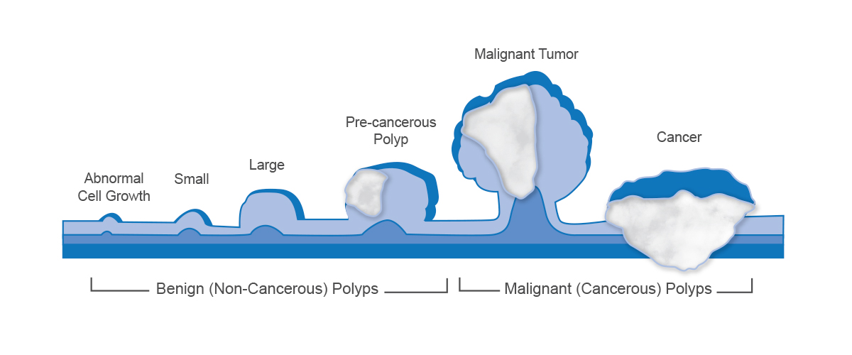 Graphic depicting a polyp developing into cancer